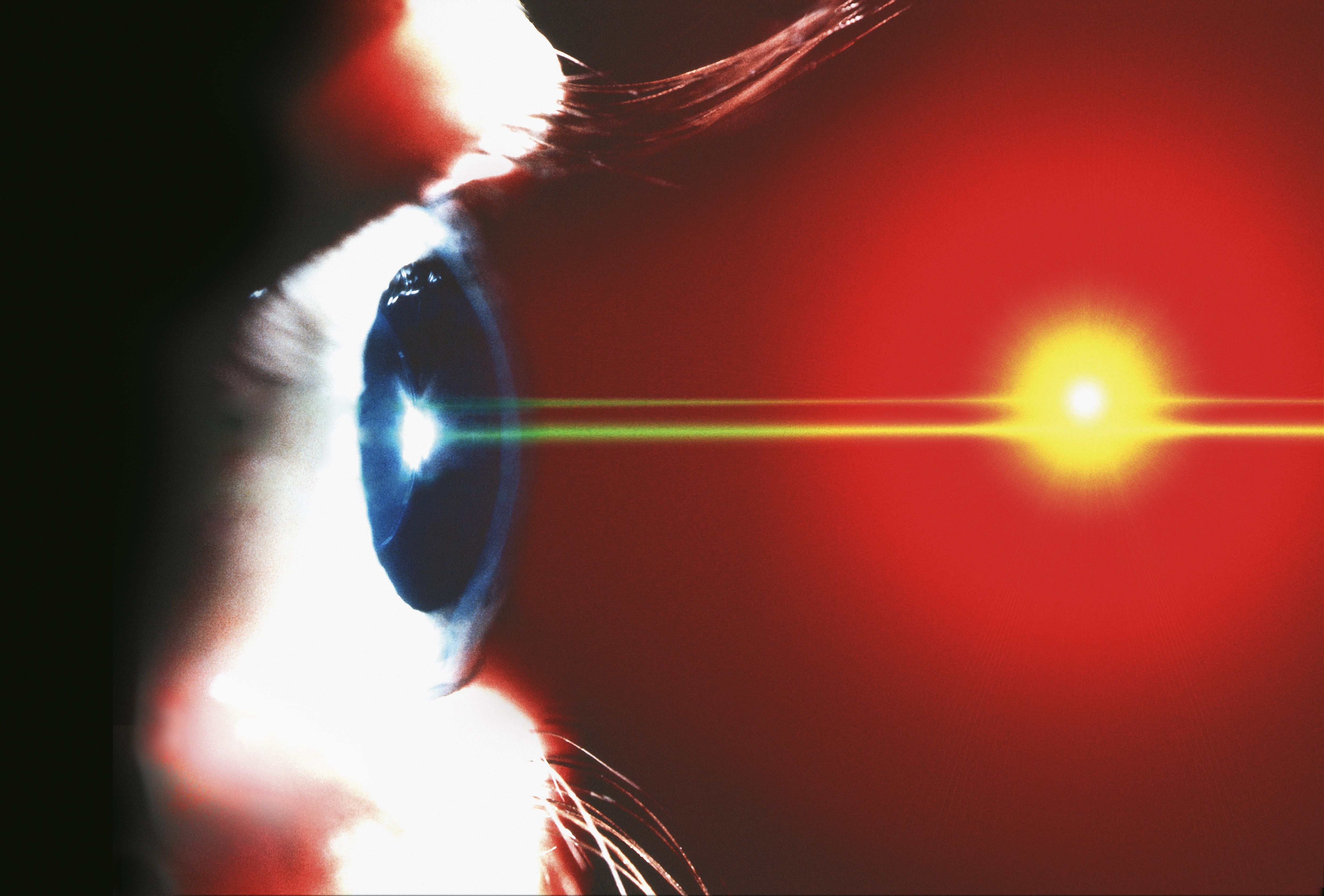 Find out If LASIK Can Be Deducted on Your Taxes